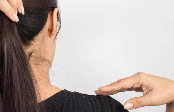 درمان های خانگی رفع شوره سر