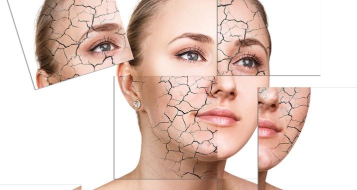 پیشگیری از خشکی پوست