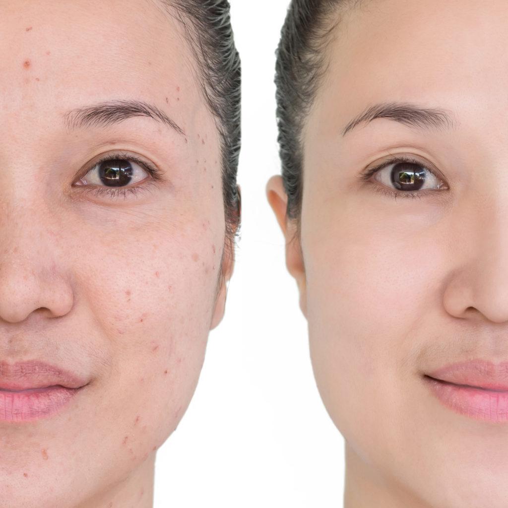 انواع جوش صورت و راه های درمان آن
