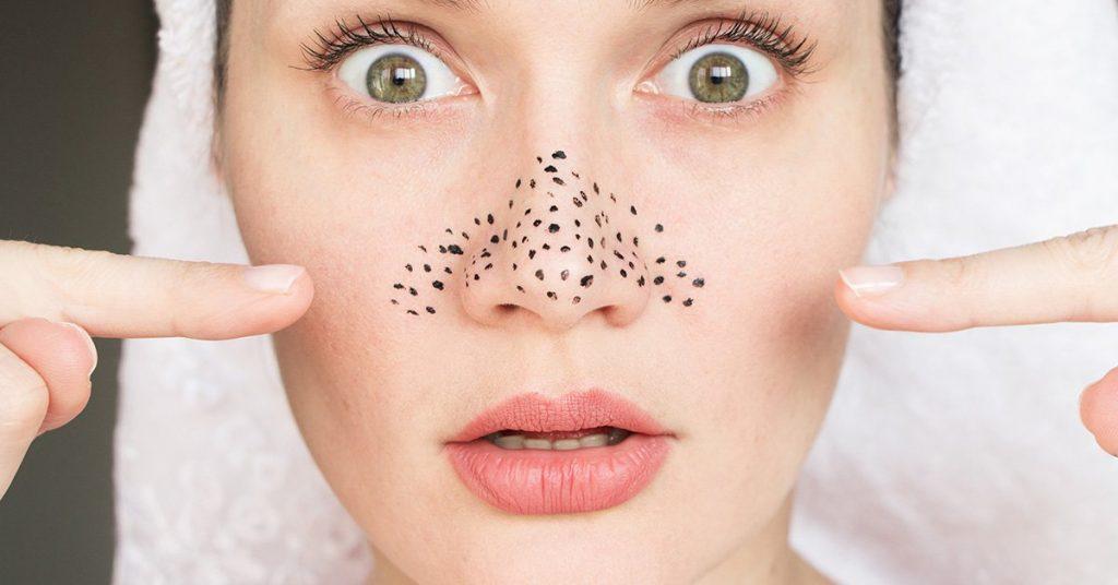 راه های درمان جوش سر سیاه