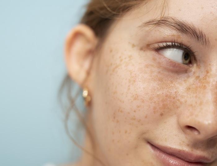 کاهش لک های پوستی