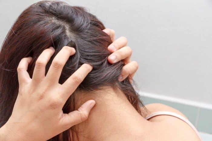 پیشگیری از اگزمای پوست سر