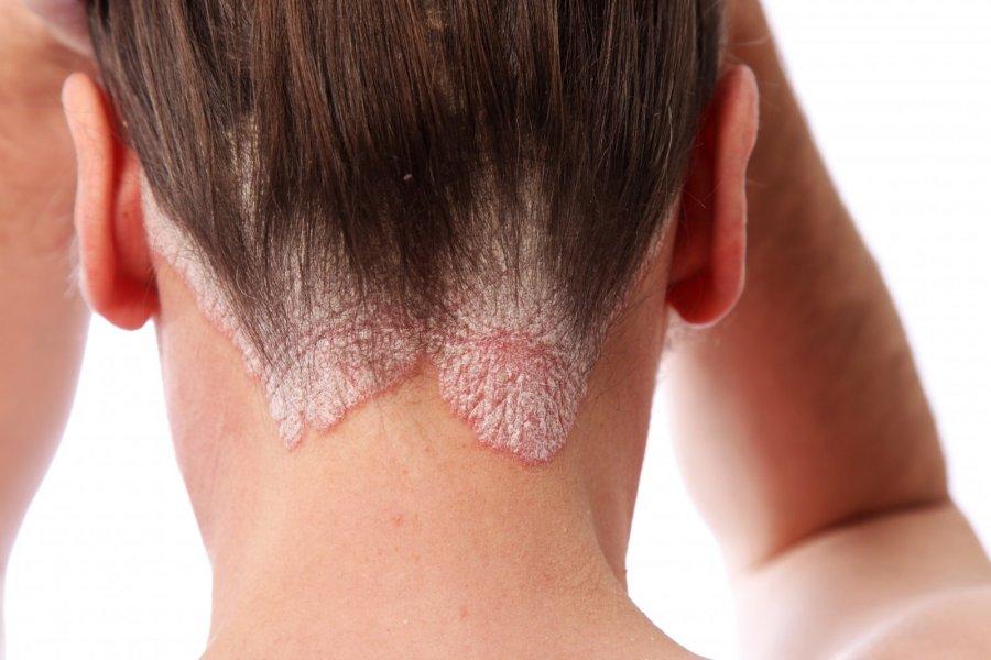 علائم اگزمای پوست سر