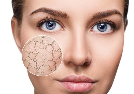 نحوه تشخیص و مراقبت از پوست خشک